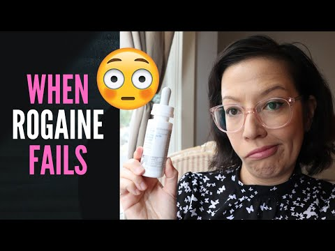 WHAT TO DO WHEN ROGAINE FAILS (Applying Liquid Generic Minoxidil Update + Women's Hair Loss Chat)