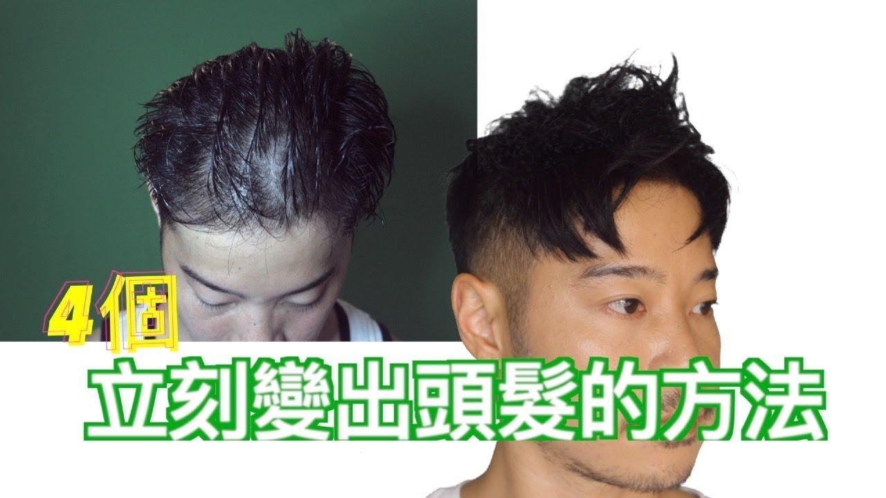 【瞬間變得多頭髮?】 How to stop HAIR thinning ?