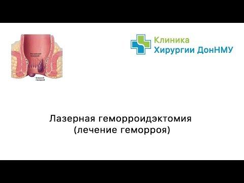 Лазерная геморроидэктомия, уделение хронического абсцесса