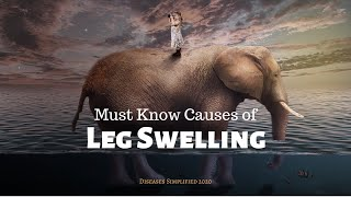 MUST KNOW CAUSES OF EDEMA/SWELLING
