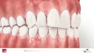 Mennyit árthat a fogszabályozás?