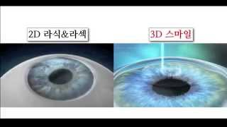 Difference between traditional 2D lasek&lasik and new 3D Smile Lasik