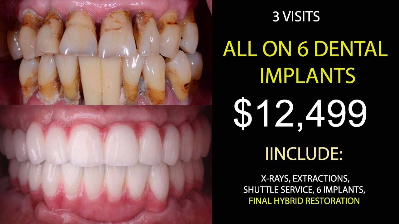 All on 6 Dental Implant Cost in Tijuana, Mexico Save Up 75 ...