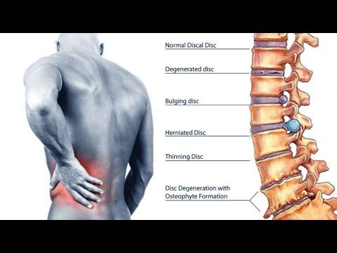 How to Cure Back Pain and Sciatica by Spinal Recovery
