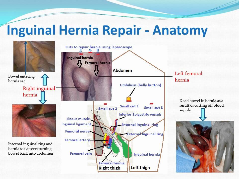 Laparoscopic Inguinal Hernia Repair patient education video - YouTube
