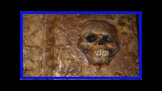 Breaking News   The True Story of Medical Books Bound in Human Skin - Facts So Romantic
