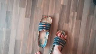 My Feet And Huge Size 18 Shoes