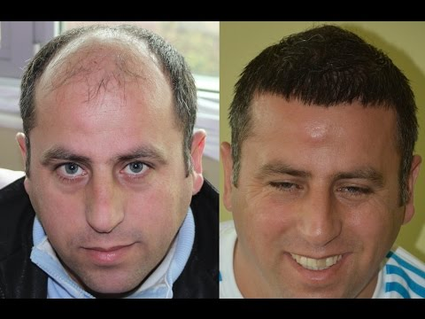 Hair Transplant Before and After Images | 8384 Grafts |  (2Years) NW 6