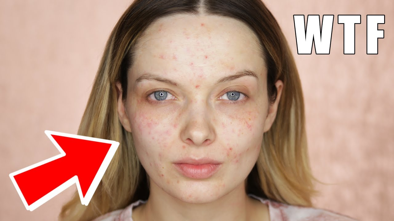 Skincare makes my skin worse