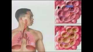 видео Пневмония: симптомы и лечение у взрослых, как проявляется, первые признаки