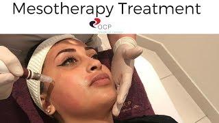 Mesotherapy Treatment in Dubai - OCP Medical Center