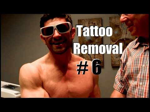 Tattoo Removal Session