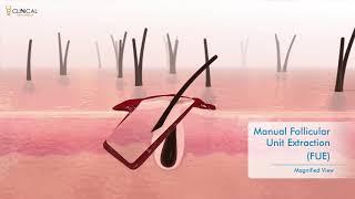 Revoluční transplantace vlasů thumbnail