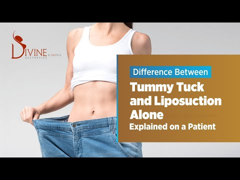 differences-between-liposuction-&-tummy-tuck