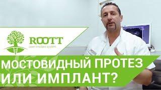 Имплант или мостовидный протез. 🤔 Что выбрать мостовидный протез или имплант?
