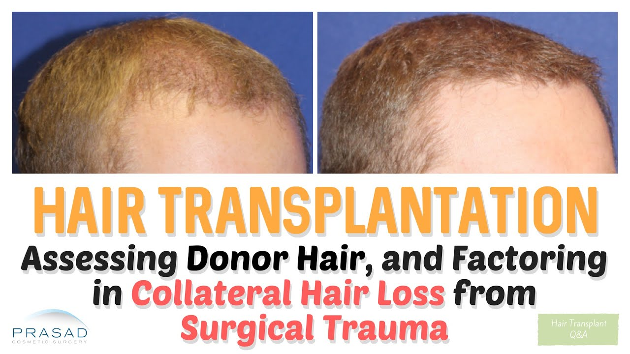 Hair Transplant Limitations | NY Hair Loss