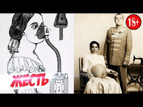 7 ЖУТКИХ ФАКТОВ О БЕРЕМЕННЫХ 19 ВЕКА | AniMax