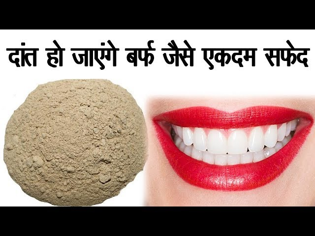 ???? ?? ?????? ???? ???? ???? ???? || Cure Any Teeth Problem || Ayurvadic Upay