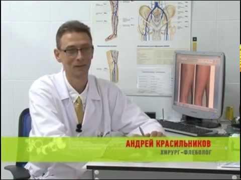 Тромбофлебит трофические язвы лечение ⋆ Лечение Сердца