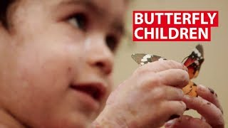 Butterfly Children: Raed&#39s Story  CNA Insider