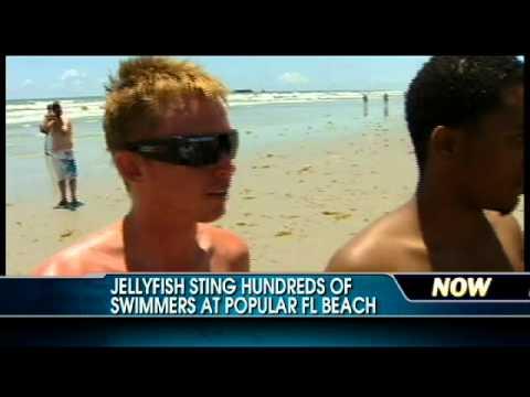 Jellyfish Sting Hundreds At Florida Beach