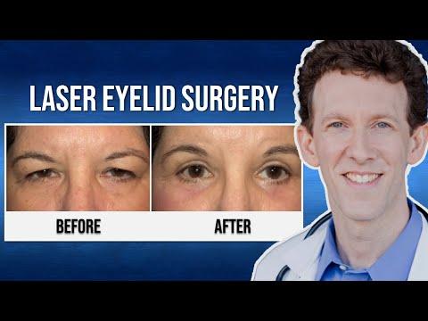Dr. Scheiner Testimonial: Eyelid Surgery