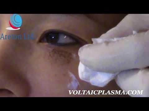 Plasma Lower eyelid tightening exclusive video