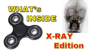 FIDGET SPINNER - What's Inside X-RAY edition