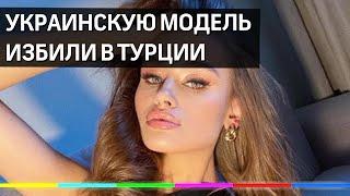 Украинскую модель Дарью Кириллюк избила охрана отеля в Турции