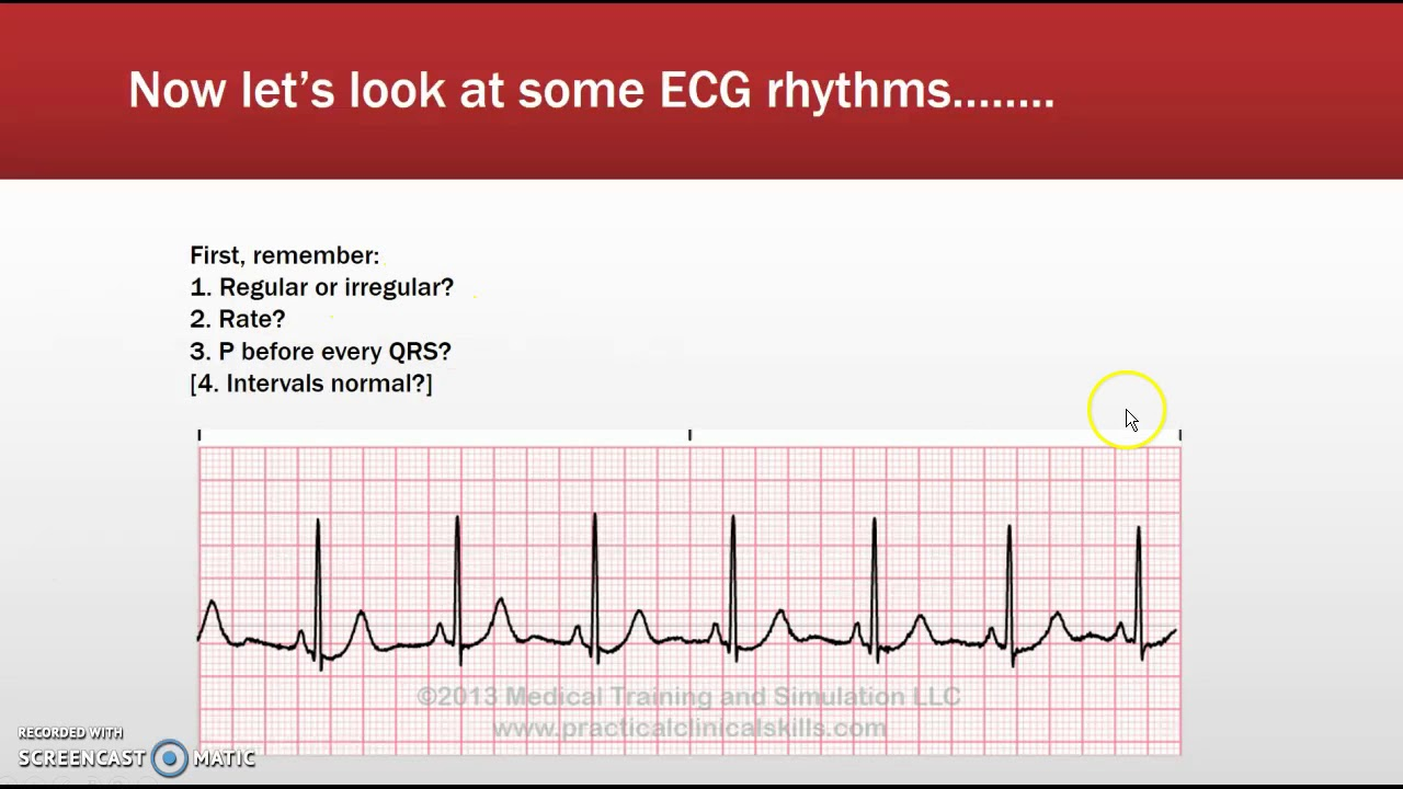 Free cardiac rhythm strip practice on-line, snaks sex pic with womens