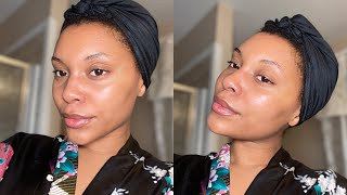 MY SKINCARE ROUTINE   HOW I CLEARED MY ACNE PRONE SKIN   BEFORE & AFTER PICTURES!!