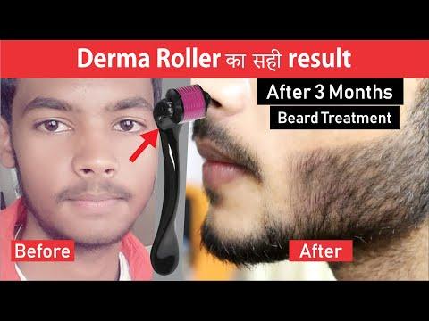 Derma Roller Result After 3 Months Derma Roller Beard Treatment Youtube