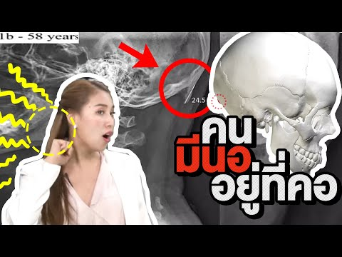 ซีเล่าข่าว | เล่นจอนาน นอ จะโผล่ที่คอ จริงหรือไม่? - วันที่ 16 Jul 2019
