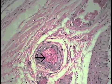 Integumentary System Histology (FreeMedEd)