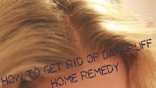 How To Get Rid Of Dandruff Home Remedy -Using All Natural Products Thumbnail
