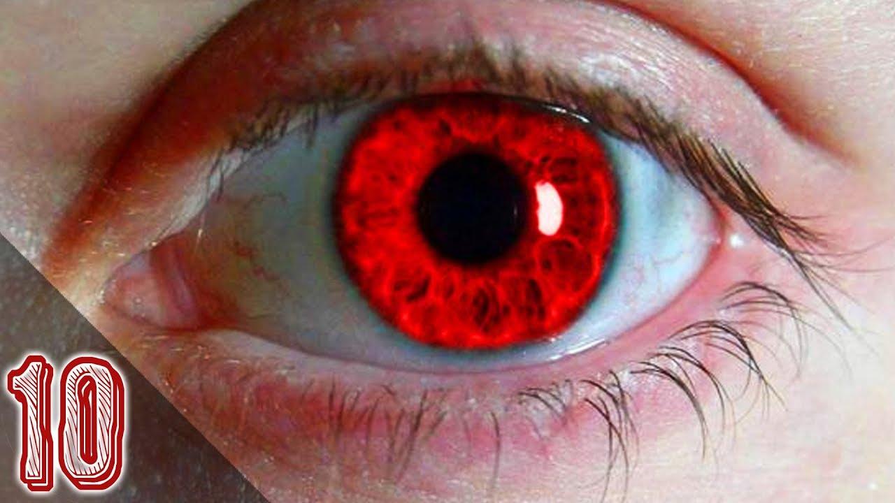 I 10 colori degli occhi pi rari al mondo youtube - Colore degli occhi diversi ...