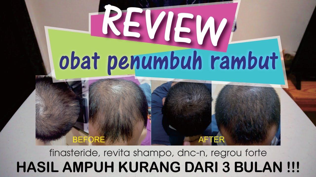 Review Obat Anti Botak Finasteride Revita Shampoo Dnc N Minoxidil 5 Lebat Kurang Dari 3 Bln Youtube