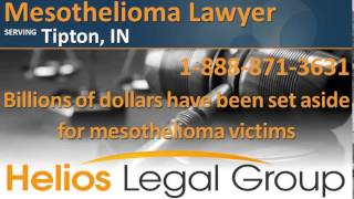 Tipton Mesothelioma Lawyer & Attorney - Indiana