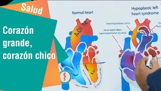 Los pequeños corazón? es vasos de enfermedad la ¿Qué del