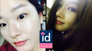 Review ID Hospital : ก่อน-หลัง ทำศัลยกรรมตา และจมูก
