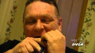 Painful at-home tooth extraction - United states health care - U.S.A.
