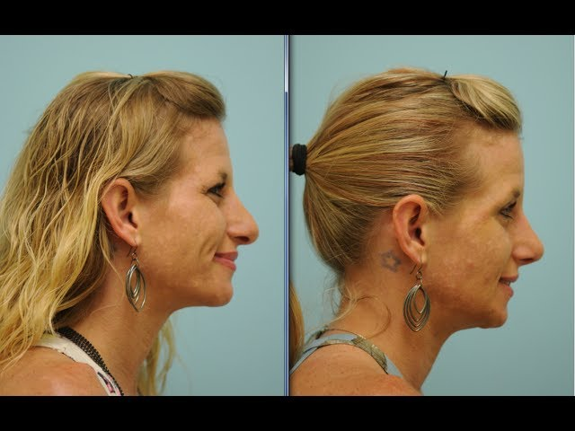 Dallas Rhinoplasty (Nose Job) Testimonial by Dr. Sam Lam