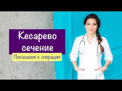 КЕСАРЕВО СЕЧЕНИЕ как операция спасения в родах. Показания к КС | Карина Грек