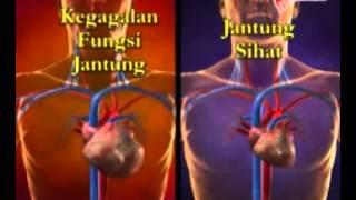Ubat sakit Jantung, pembersih saluran darah jantung, ubat jantung, ubat rawatan jantung,