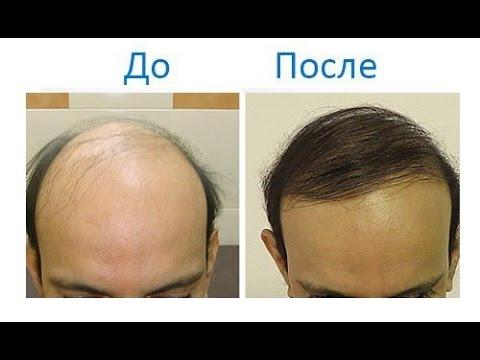 Выпадают волосы при раке
