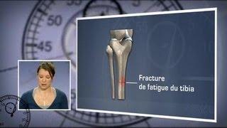 Fracture de Fatigue : Comment s'en Sortir ?