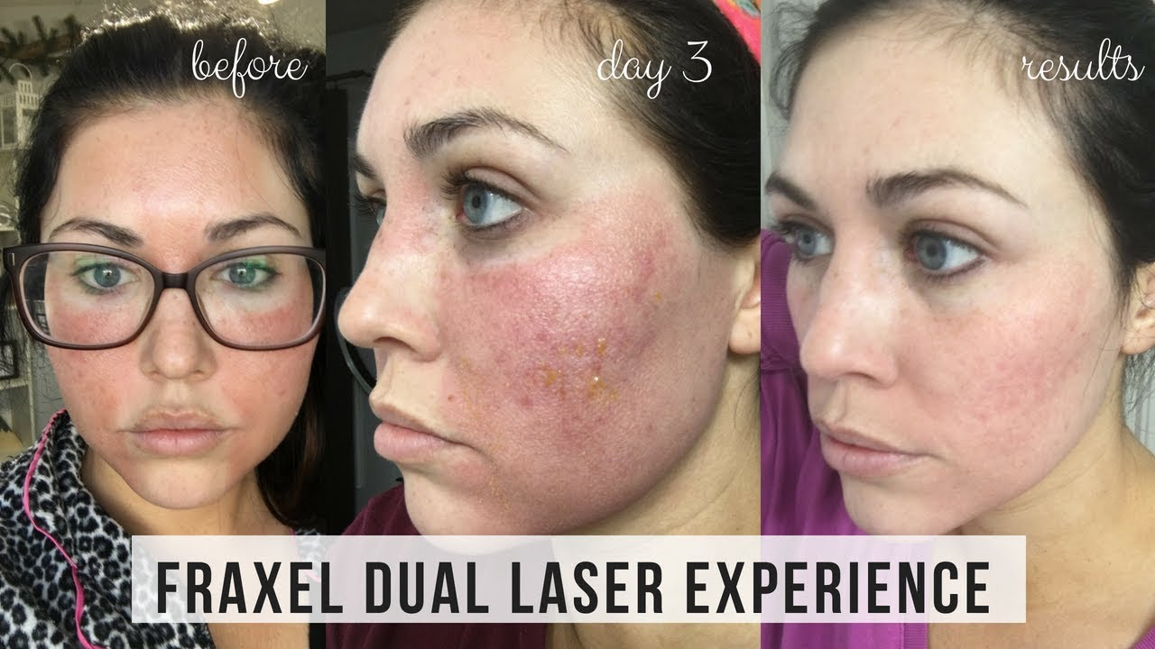 Fraxel Dual Laser Treatment For Acne Scars Day By Day Results Kailyn Cash Youtube