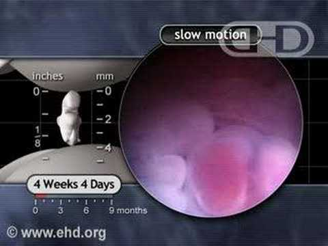 <p>The Beating Heart in Slow Motion: 4 1/2 Weeks Pregnant</p>