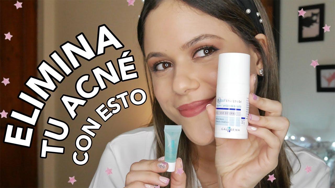 COMO ELIMINAR UN GRANO EN UNA NOCHE (2 remedios que realmente funcionan) | Priscila