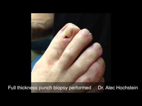 Nail bed biopsy procedure of pigmented lesion - YouTube